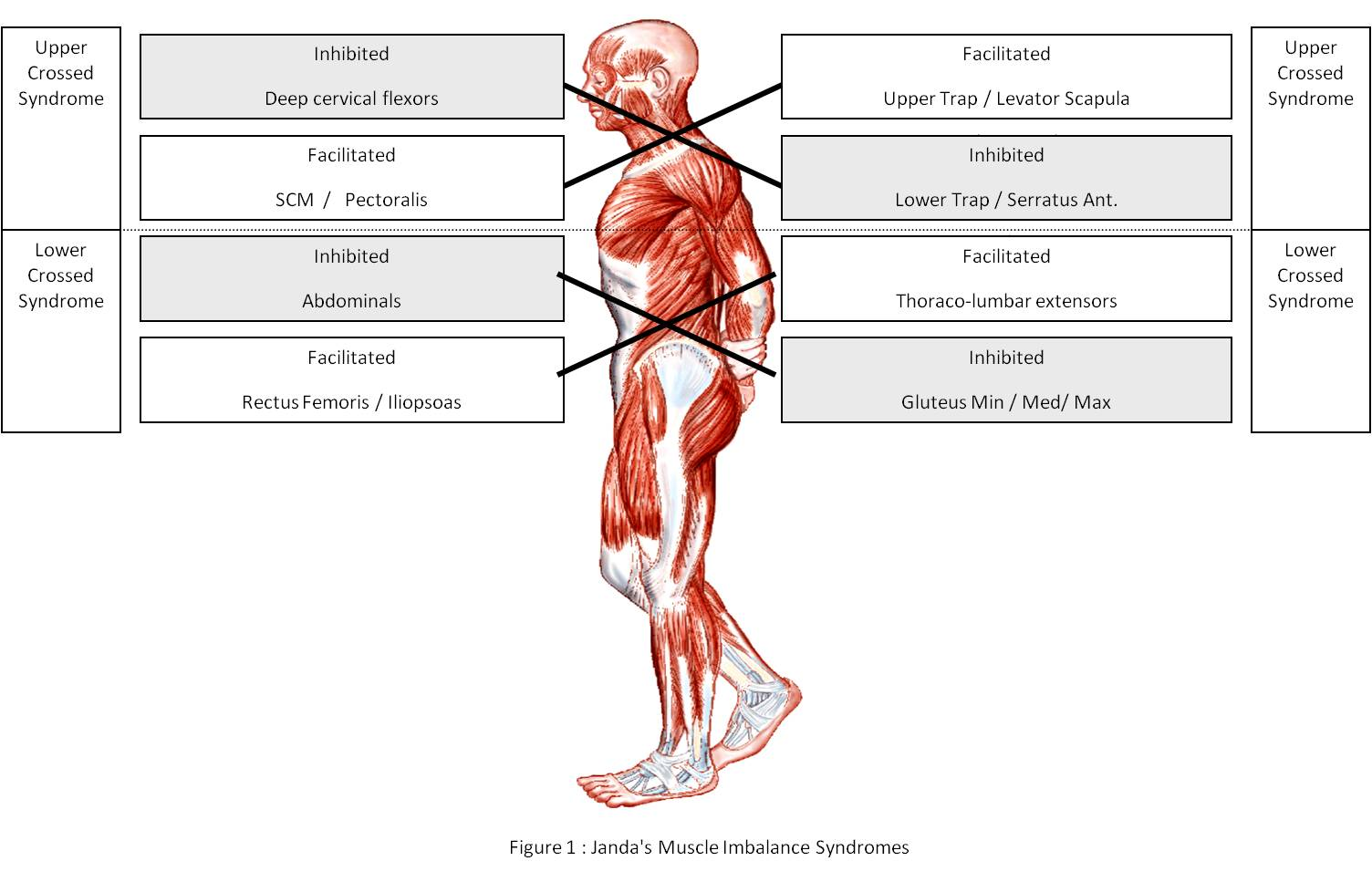 Janda Cross-Syndromes - Postural Syndrome